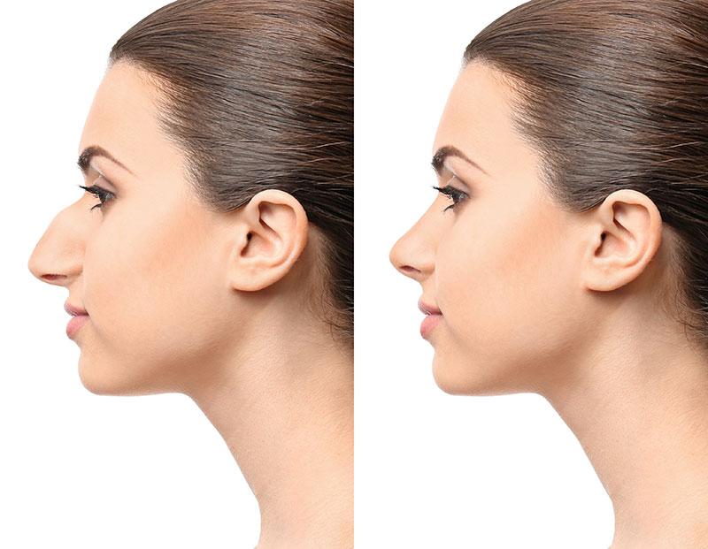 Nose Reshaping - Rhinoplasty