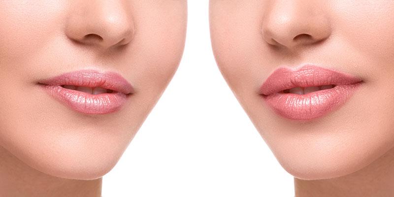 Lip Fillers Restylane